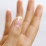 從指甲看健康